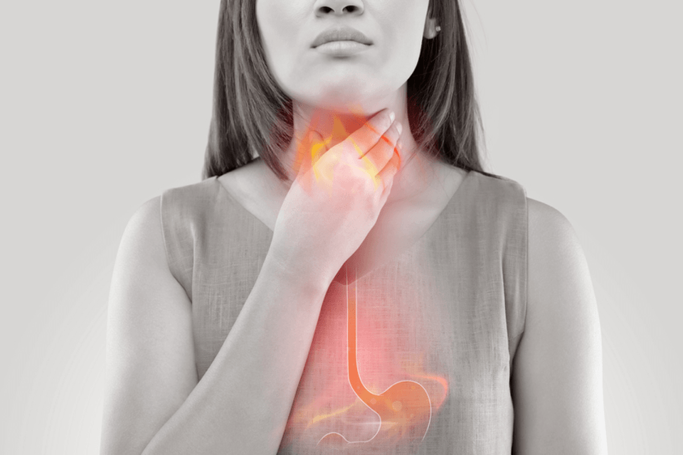 Acid reflux can kill the voice